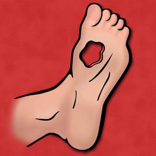 Diabetic Foot Ulcers Artwork