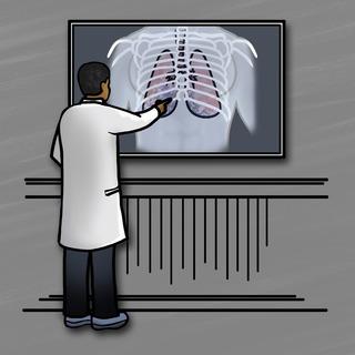 Pneumonia – Treatment and Strategy Artwork