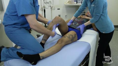 Reduction Techniques for Posterior Hip Dislocation Artwork