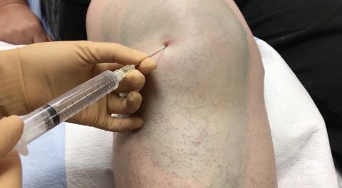 Knee Arthrocentesis and Intraarticular Injection Artwork