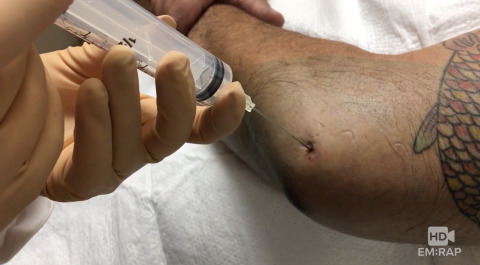 Elbow Arthrocentesis Artwork