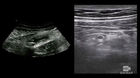 Ultrasound of Appendicitis Artwork