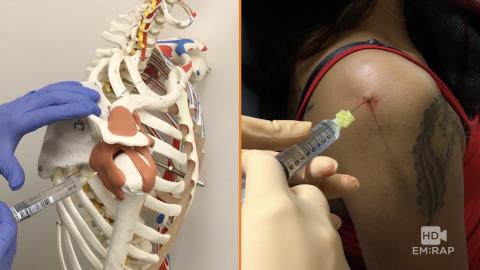 Shoulder Joint Injection Artwork