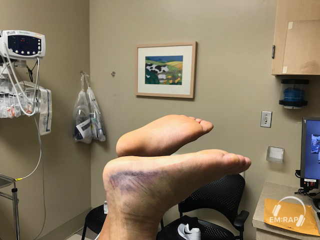 Image of Achilles Rupture Matles Sign 1