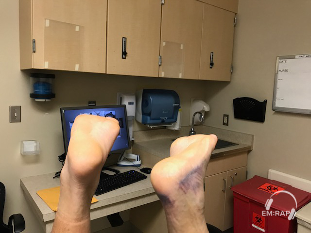 Image of Achilles Rupture Matles Sign 2