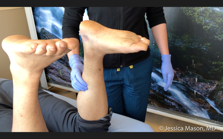 Image of Achilles Rupture with Positive Thompson Test