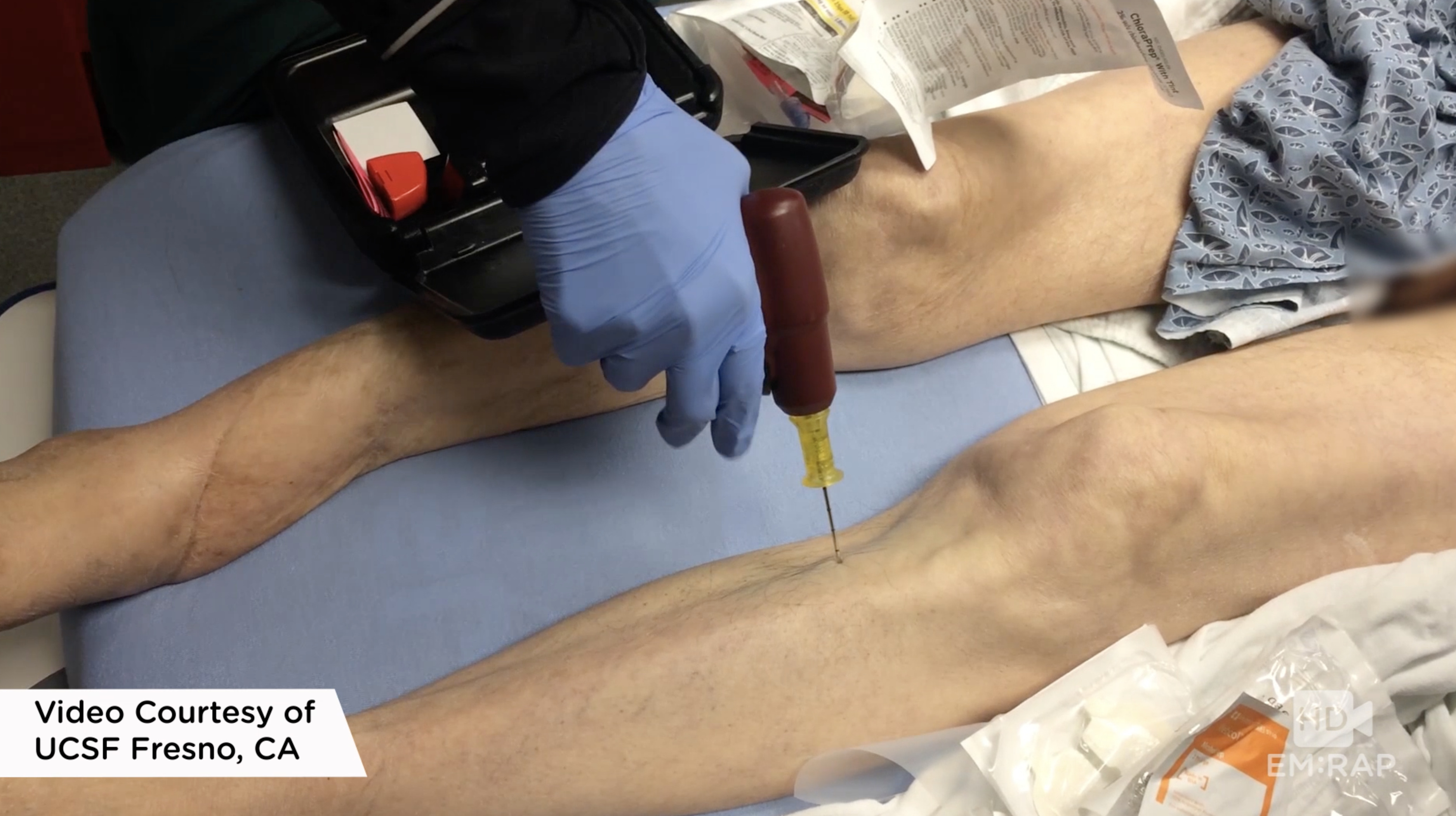 HD - Intraosseous Access with EZ-IO | EM:RAP