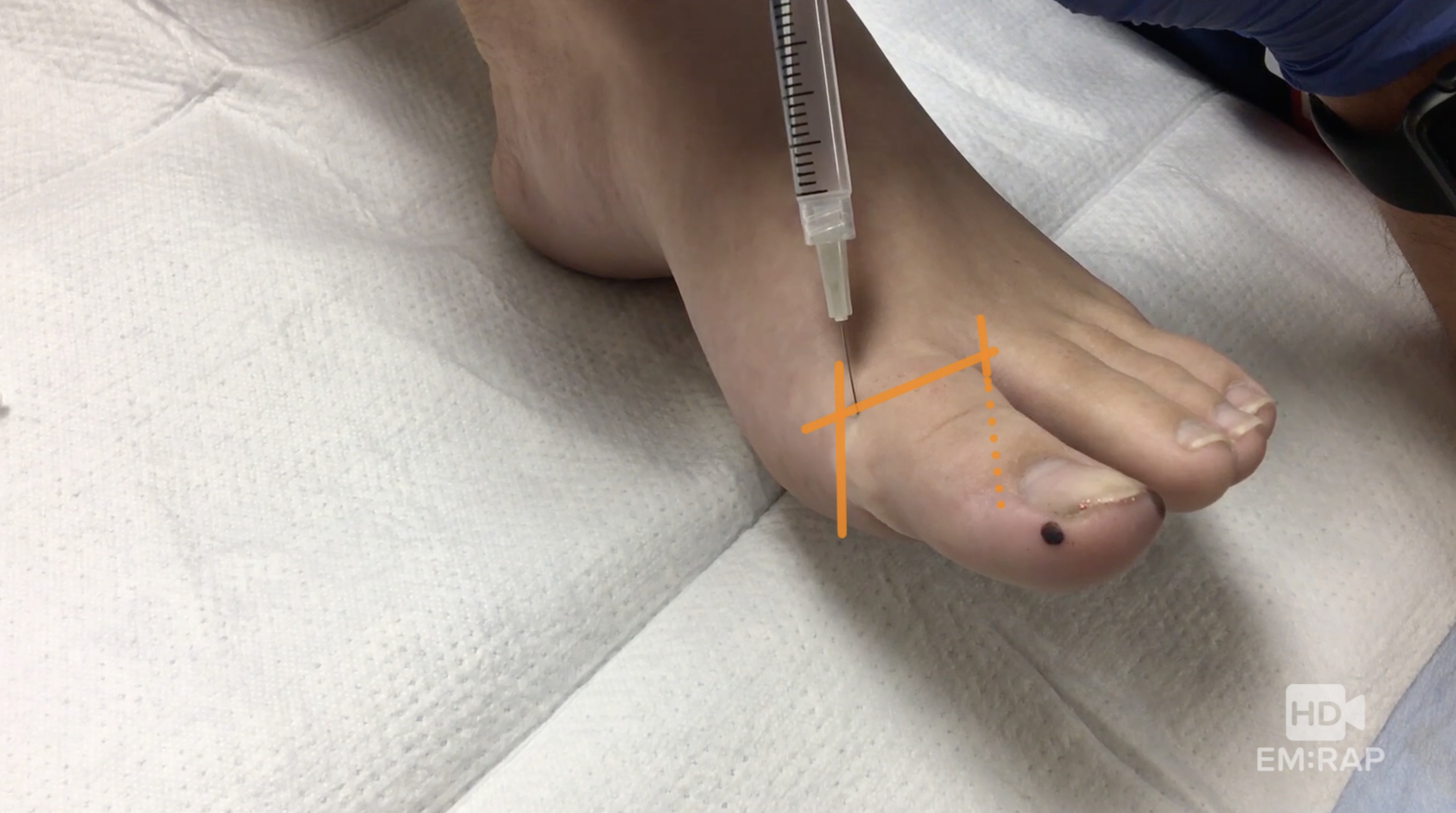 HD - Removal of Ingrown Toenail | EM:RAP